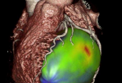 Nieuwe techniek voor meting van doorbloeding van de hartspier